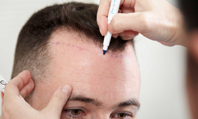 When Considering A Hair Transplant, Choose Your Options Carefully