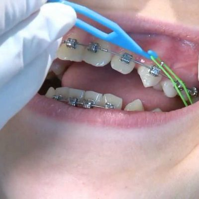 How To Enjoy Perfect Dental Braces For Your Teeth