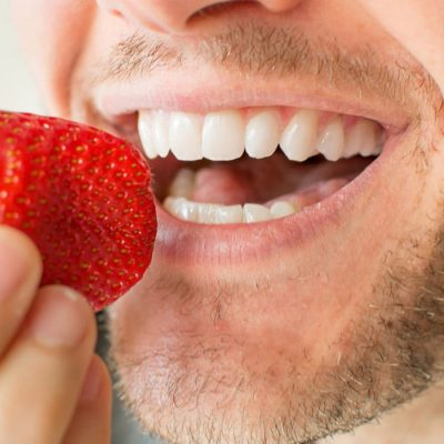 Why Should One Go For Teeth Whitening?