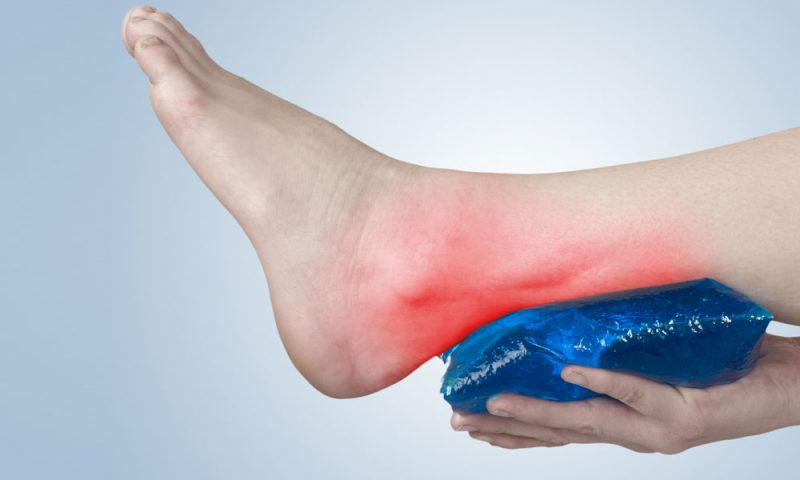 Getting Effective Treatment For Achilles Tendinitis