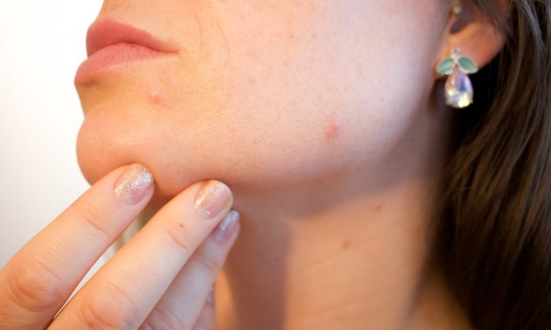 Understanding The Enormous Repercussions Of Acne