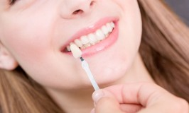 Select Veneers To Improve Your Smile