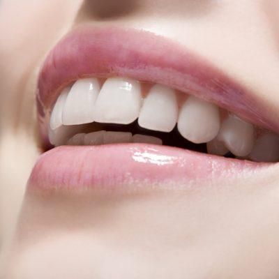 Four Ways to Improve Your Smile