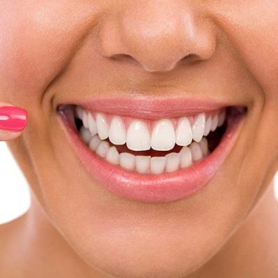 Why Dental Implants Are A Good Choice