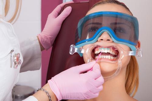 Teeth Whitening At Whiteteethwhiteningkits.Co.UK
