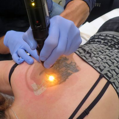 Everything You Need To Know About Laser Tattoo Removal
